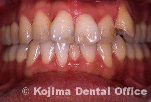 歯間部歯肉を自然な形に7年後