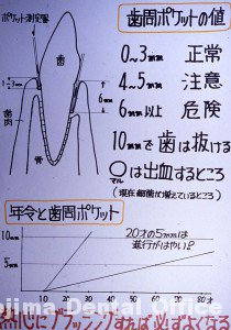 歯周病002