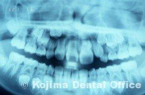 1983.10.24. 手術  歯牙種