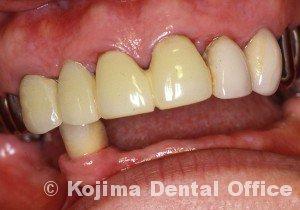 歯肉の変化12