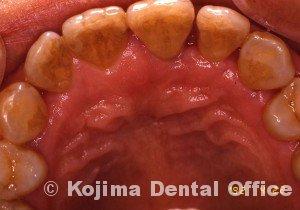 歯周炎の歯肉変化④