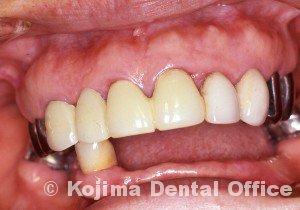 歯肉の変化15