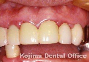 歯肉の変化8