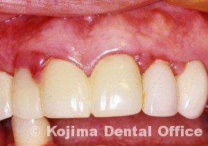 歯肉の変化3