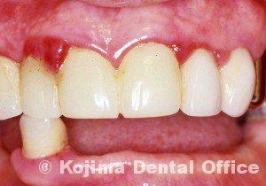 歯肉の変化1