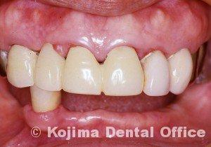 歯肉の変化9