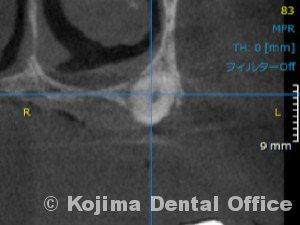 口蓋の埋伏歯5