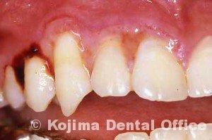 潰瘍性歯肉炎