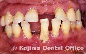 親子の歯周炎1