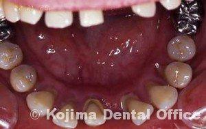 親子の歯周炎3