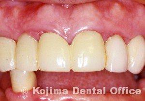歯肉の変化7