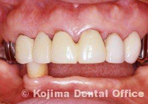 歯肉の変化17