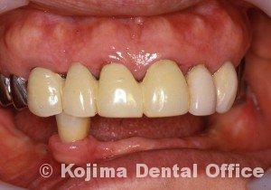歯肉の変化13