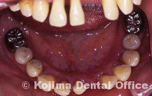 親子の歯周炎6