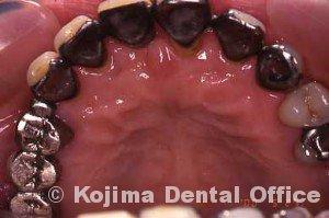 親子の歯周炎12