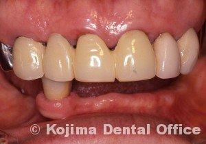 歯肉の変化14