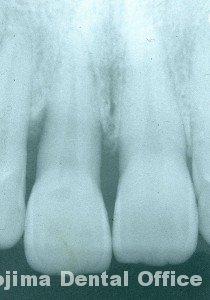 歯周炎の歯肉変化⑥