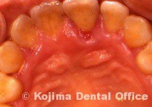 歯周炎の歯肉変化②