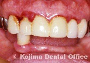 歯肉の変化2