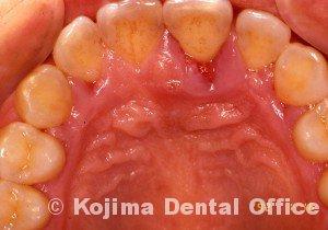 歯周炎の歯肉変化①