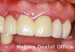 歯肉の変化6