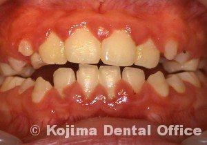 兄弟の歯肉炎2