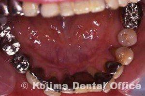 親子の歯周炎13