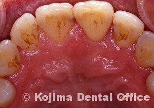 歯周炎の歯肉変化⑤