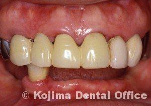 歯肉の変化11