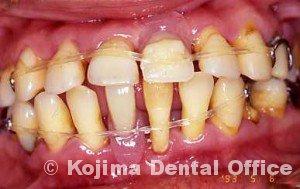 親子の歯周炎7