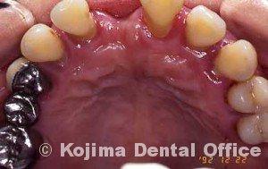 親子の歯周炎2