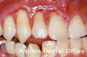 潰瘍性歯肉炎2