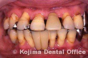 親子の歯周炎11
