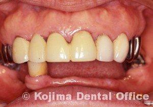 歯肉の変化18
