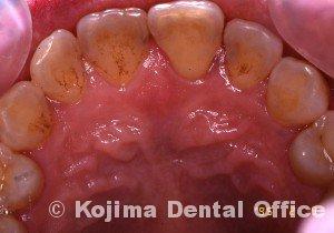 歯周炎の歯肉変化⑦