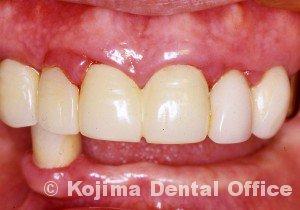 歯肉の変化5