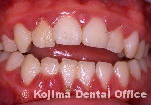 兄弟の歯肉炎3