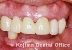 歯肉の変化10
