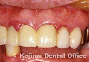 歯肉の変化4