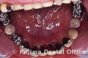 親子の歯周炎10