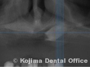 口蓋の埋伏歯4