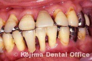 親子の歯周炎8