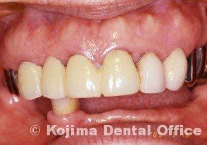 歯肉の変化16