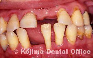 親子の歯周炎4