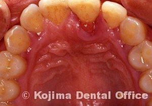 歯周炎の歯肉変化