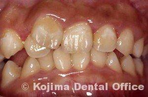歯肉炎1ヶ月半後