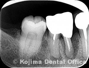 %e3%83%95%e3%83%a9%e3%83%83%e3%83%97%e6%89%8b%e8%a1%9328-3-28-dental