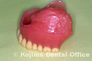 顎補綴004