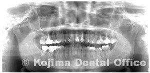 歯性上顎洞炎1