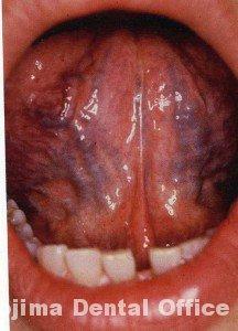 舌下部静脈1